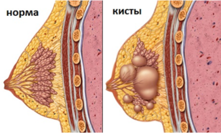 Какие необходимо принимать витамины при мастопатии