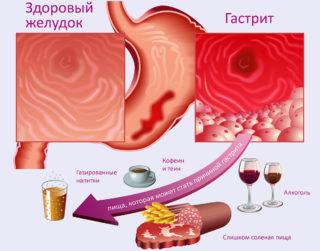 Давящая боль в грудной клетке посередине