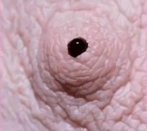 Белая жидкость из сосковца при надавливании