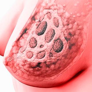 Температура при мастопатии 55