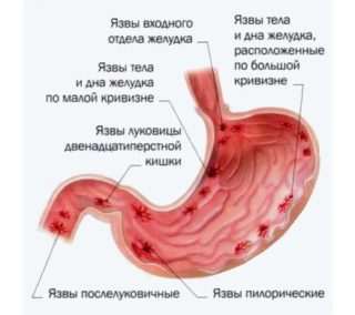 Болит ребро с правой стороны при вдохе
