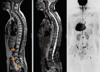 Метастазы при раке молочной железы 2 стадии