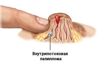 Кровавые выделения из груди