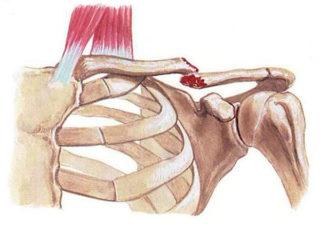 Перелом ключицы со смещением и без симптомы и лечение