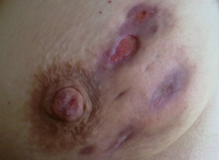 Воспаление молочной железы — причины, клиника, лечение