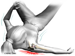 Повреждение и разрыв связок ключицы лечение и реабилитация