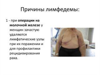 Откачка лимфы после мастэктомии