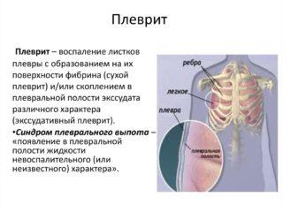 Колет в грудной клетке справа, слева, посередине: причины