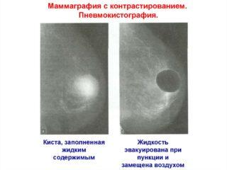 Тянет в молочной железе слева