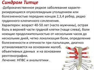 Как болят мышцы в области грудины