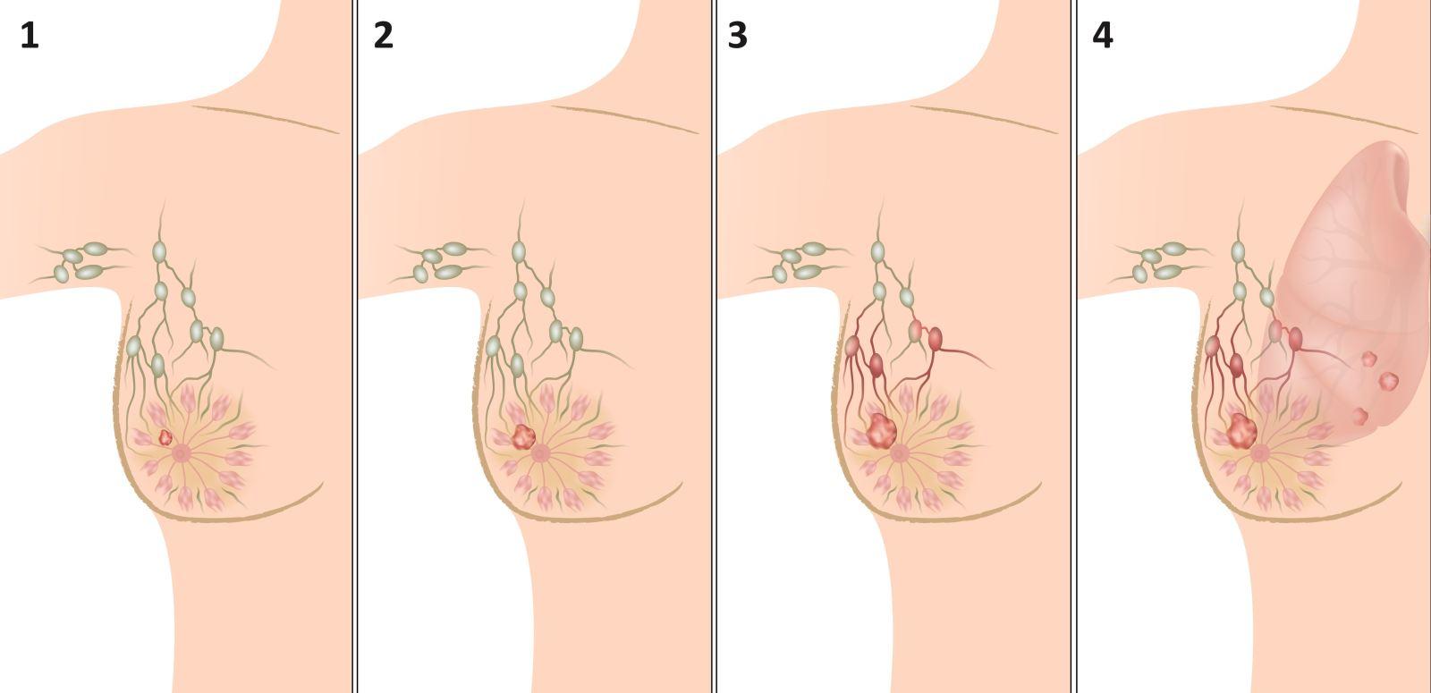 Стадии рака молочной железы классификация лечение