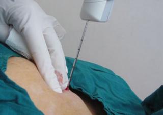 Трепан биопсия молочной железы