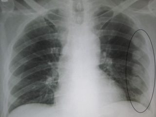 Трещина в ребре рентген