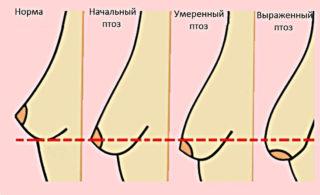 Мазь для увеличения грудных желез