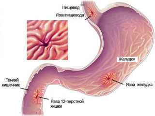 Болит над правой грудиной у женщин