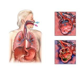 Почему болит слева в грудной клетке при вдохе