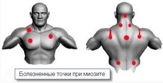 Миозит грудной клетки симптомы и лечение