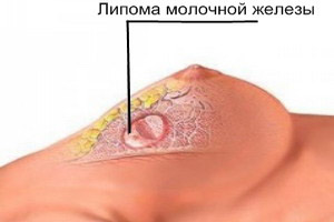 Шишка на грудной клетке у мужчин и женщин посередине: причины уплотнений