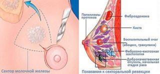 Удаление молочной железы при опухоли и фиброаденоме: отзывы и сколько стоит?