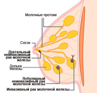Виды опухолей молочной железы у женщин