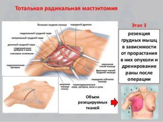 Увеличены лимфоузлы плечевые после удаления рака груди