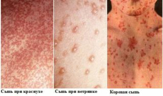 Сыпь на груди и под ней: почему происходят высыпания