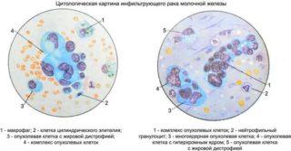 Расшифровка цитологического исследования пунктата молочной железы: бесструктурное межуточное вещество и клетки кубического эпителия