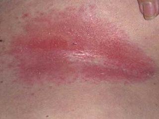 Сыпь под грудью, зуд и красные пятна у женщины: фото, симптомы, причины, лечение