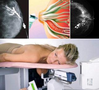 Прием маммолога на какой день цикла 3