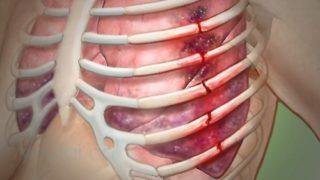 Корсет при переломе позвоночника