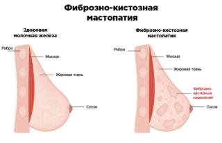 Чем опасна мастопатия молочной