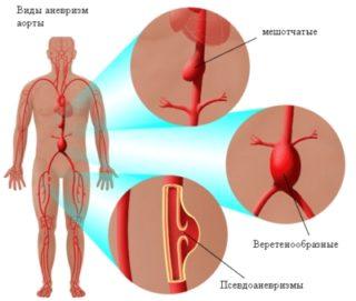 Болит между грудина прям посередине у женщин