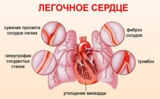 Трясется сердце что это — Давление и всё о нём