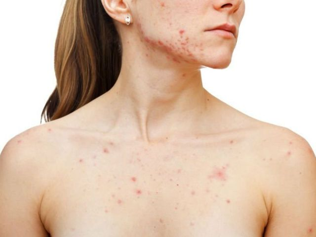 Сыпь на грудине у взрослых. Причины и лечение сыпи на груди и спине у женщин