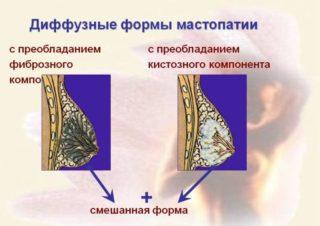 Локализованная фиброзно кистозная мастопатия