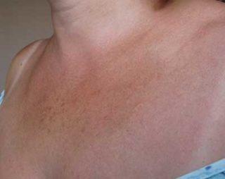 Как избавиться от темных пятен на коже под грудью