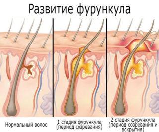 Припухлость в яремной ямке на шее