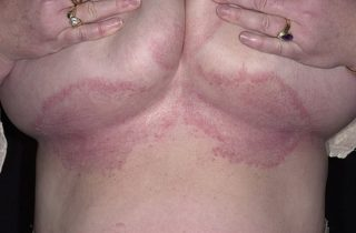 Грибок под грудными железами у женщин: рецепты и мази для лечения