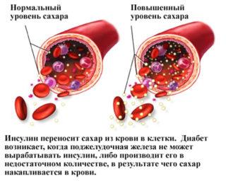 Болит и чешется молочная железа 2