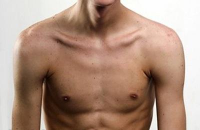 Формы грудной клетки человека. Форма грудной клетки у детей
