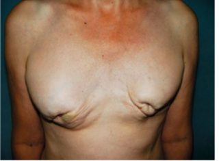 Пятна на груди у женщин: коричневые, желтые, белые