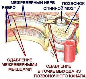 Тяжесть в грудной клетке: посередине, слева, справа