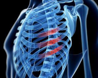 Сколько пар ребер у человека в грудной клетке: у мужчин и женщин || У кого больше ребер