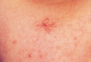 Сосудистые звездочки на грудине: причины у женщин и мужчин