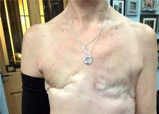 После мастэктомии болит плечевой сустав