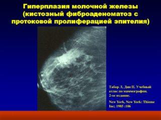 Железистая ткань в груди