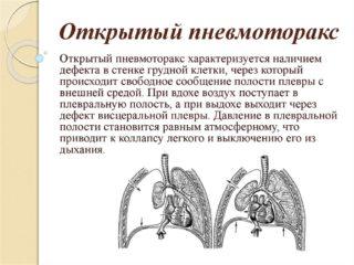 Рентген органов грудной клетки: что показывает рентгенография, как часто можно делать