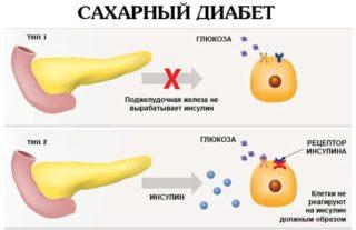 Хондропротекторы при остеохондрозе тазобедренного сустава