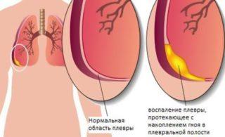 Боль в груди справа при глубоком вдохе