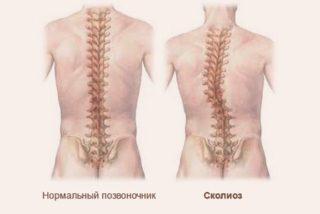 Боль в грудной клетке - причины, диагностика и лечение